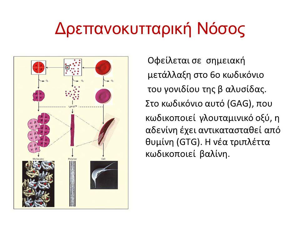 Δρεπανοκυτταρική Νόσος Οφείλεται σε σημειακή μετάλλαξη στο 6ο κωδικόνιο του γονιδίου της β αλυσίδας. Στο κωδικόνιο αυτό (GAG), που κωδικοποιεί γλουταμ