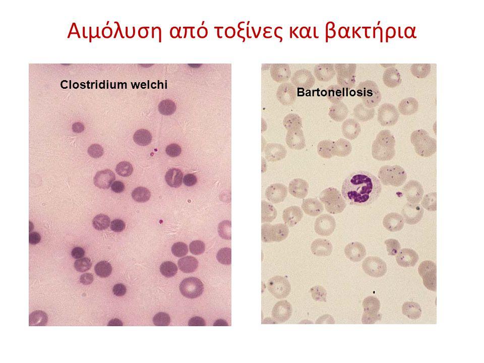 Αιμόλυση από τοξίνες και βακτήρια Bartonellosis Clostridium welchi