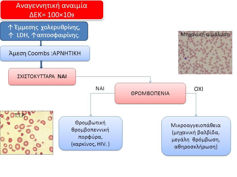 Αναγεννητική αναιμία ΔΕΚ= 100×10 9 Αναγεννητική αναιμία ΔΕΚ= 100×10 9 ↑ Έμμεσης χολερυθρίνης, ↑ LDH, ↑απτοσφαιρίνης. Άμεση Coombs :ΑΡΝΗΤΙΚΗ ΣΧΙΣΤΟΚΥΤΤ