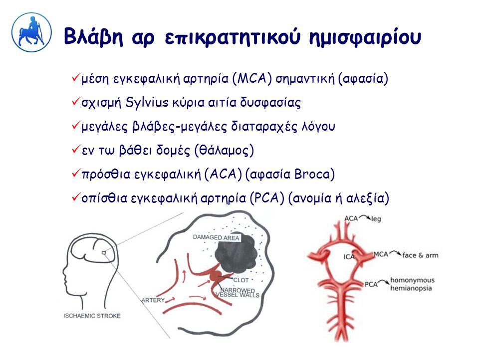 Βλάβη αρ επικρατητικού ημισφαιρίου μέση εγκεφαλική αρτηρία (MCA) σημαντική (αφασία) σχισμή Sylvius κύρια αιτία δυσφασίας μεγάλες βλάβες-μεγάλες διαταρ