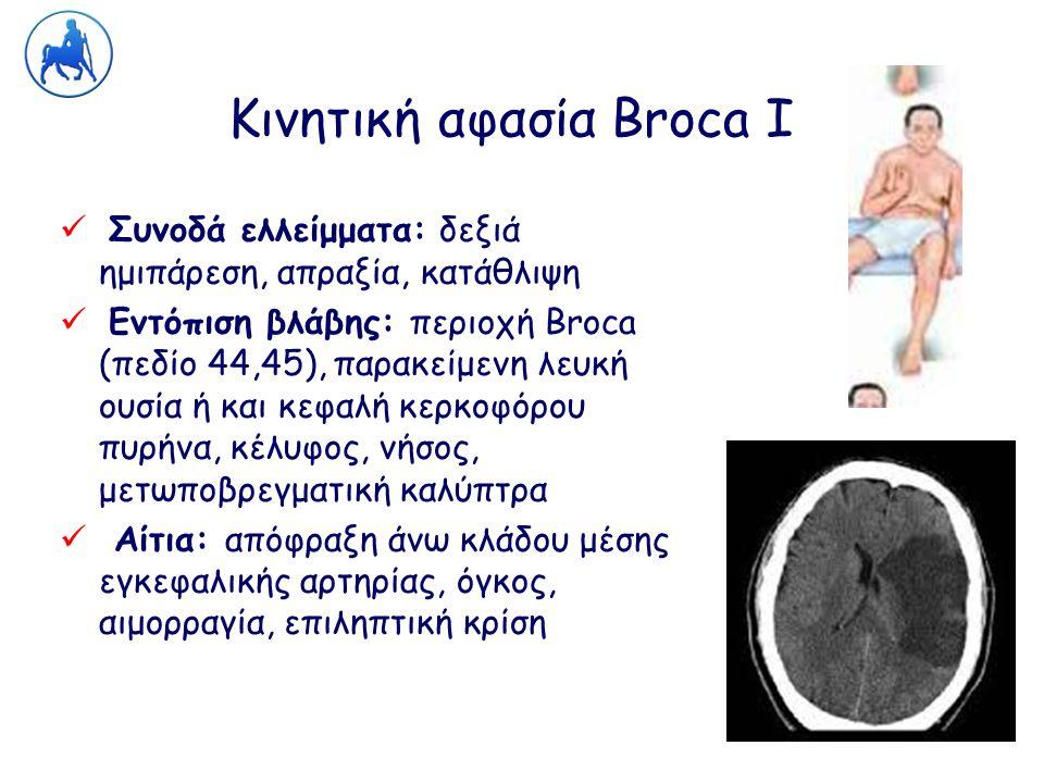 Κινητική αφασία Broca Ι Συνοδά ελλείμματα: δεξιά ημιπάρεση, απραξία, κατάθλιψη Εντόπιση βλάβης: περιοχή Broca (πεδίο 44,45), παρακείμενη λευκή ουσία ή