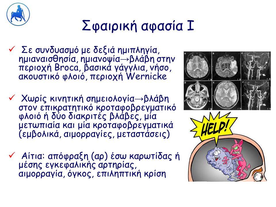 Σφαιρική αφασία Ι Σε συνδυασμό με δεξιά ημιπληγία, ημιαναισθησία, ημιανοψία → βλάβη στην περιοχή Broca, βασικά γάγγλια, νήσο, ακουστικό φλοιό, περιοχή