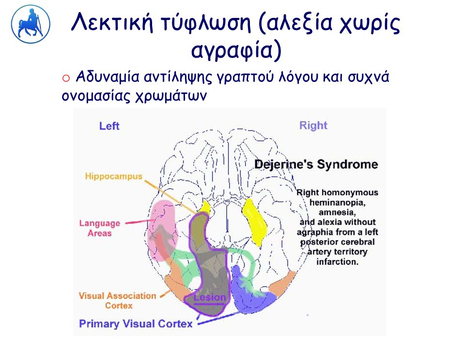 Λεκτική τύφλωση (αλεξία χωρίς αγραφία) o Αδυναμία αντίληψης γραπτού λόγου και συχνά ονομασίας χρωμάτων