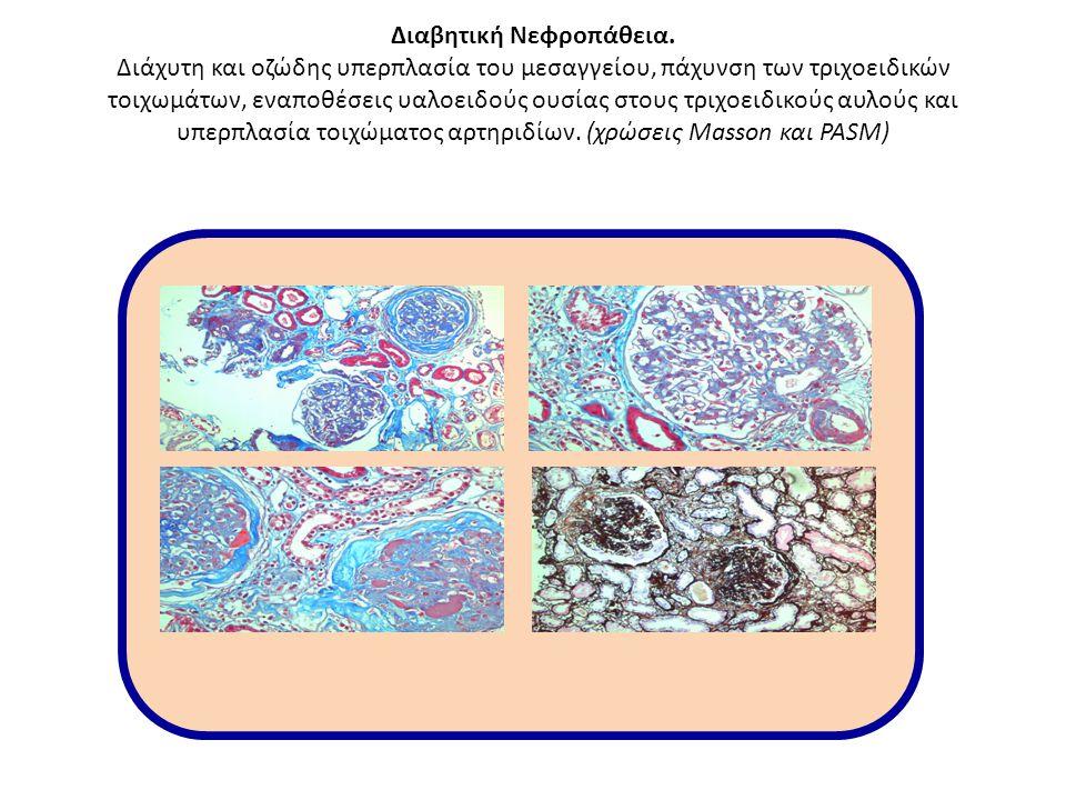 Διαβητική Νεφροπάθεια. Διάχυτη και οζώδης υπερπλασία του μεσαγγείου, πάχυνση των τριχοειδικών τοιχωμάτων, εναποθέσεις υαλοειδούς ουσίας στους τριχοειδ
