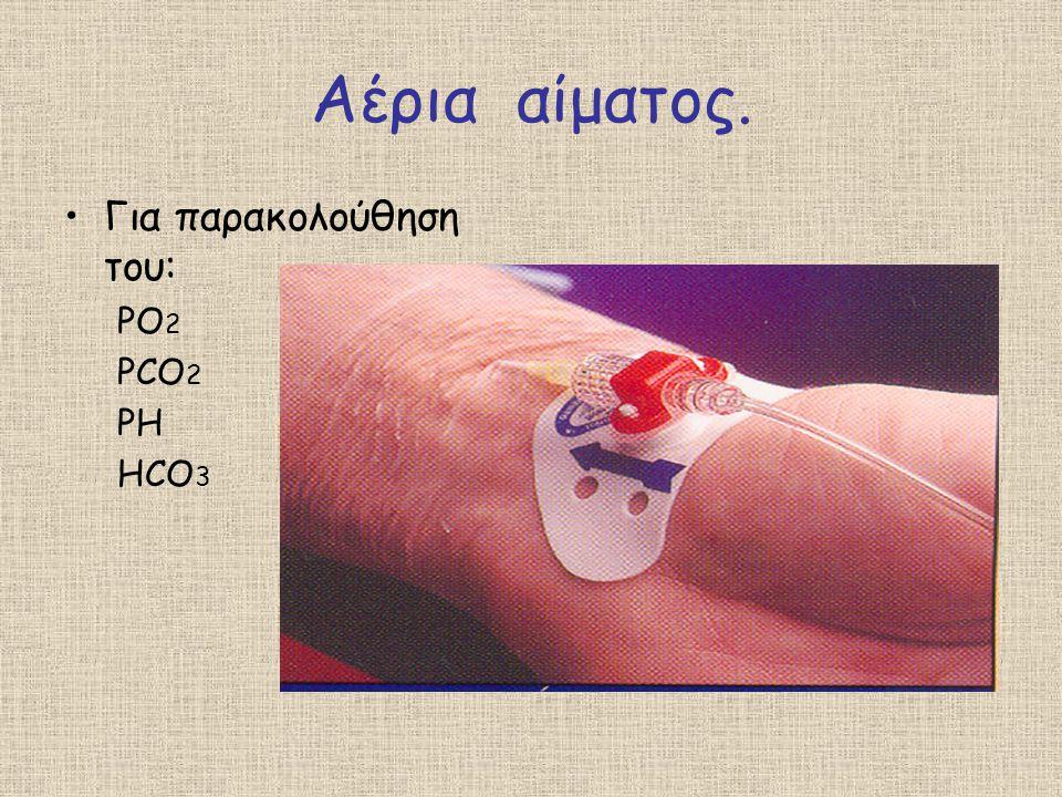 Αέρια αίματος. Για παρακολούθηση του: PO 2 PCO 2 PH HCO 3