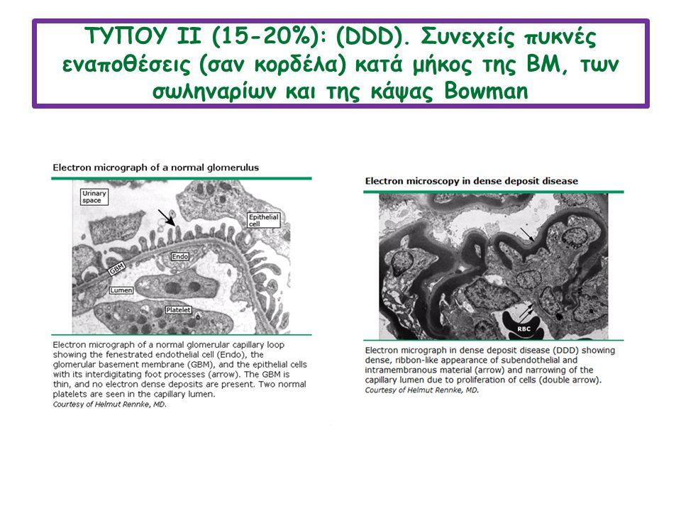 ΤΥΠΟY ΙΙ (15-20%): (DDD). Συνεχείς πυκνές εναποθέσεις (σαν κορδέλα) κατά μήκος της ΒΜ, των σωληναρίων και της κάψας Bowman