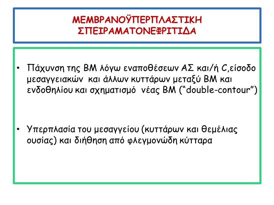 C 3 ΣΝ Όπως η DDD οφείλεται σε ενεργοποίηση της εναλλακτικής οδού του C, λόγω αντισωμάτων ή μεταλλάξεων των ρυθμιστικών πρωτεϊνών του C Στο ΚΜ αλλοιώσεις ΜΥΣΝ Στον ανοσοφθορισμό: C 3 στο σπείραμα και στο μεσάγγειο Στο HΜ :εναποθέσεις όπως σε ΑΣ ΜΥΣΝ και όχι όπως στην DDD