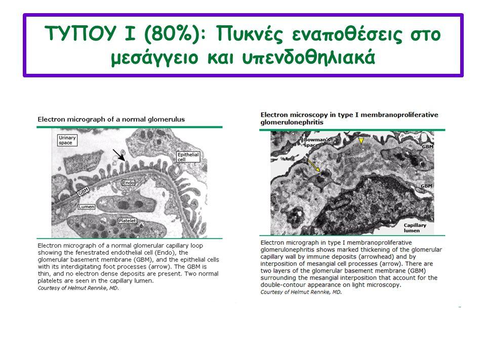 ΚΛΙΝΙΚΗ ΕΙΚΟΝΑ Τυπική κλινική εικόνα είναι η απότομη εμφάνιση αιματουρίας, βαρειάς λευκωματουρίας, οιδημάτων και ΑΥ (οξύ νεφριτικό/νεφρωσικό σ.) ΔΔ : ΣΕΛ, μεταλοιμώδης ΣΝ, αγειϊτιδα κ.α Η διάγνωση πρωτοπαθούς ΜΥΣΝ τίθεται εξ΄ αποκλεισμού