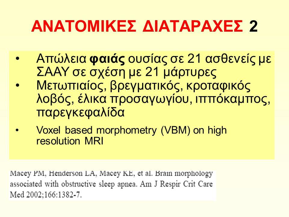 ΑΝΑΤΟΜΙΚΕΣ ΔΙΑΤΑΡΑΧΕΣ 2 Απώλεια φαιάς ουσίας σε 21 ασθενείς με ΣΑΑΥ σε σχέση με 21 μάρτυρες Μετωπιαίος, βρεγματικός, κροταφικός λοβός, έλικα προσαγωγίου, ιππόκαμπος, παρεγκεφαλίδα Voxel based morphometry (VBM) on high resolution MRI