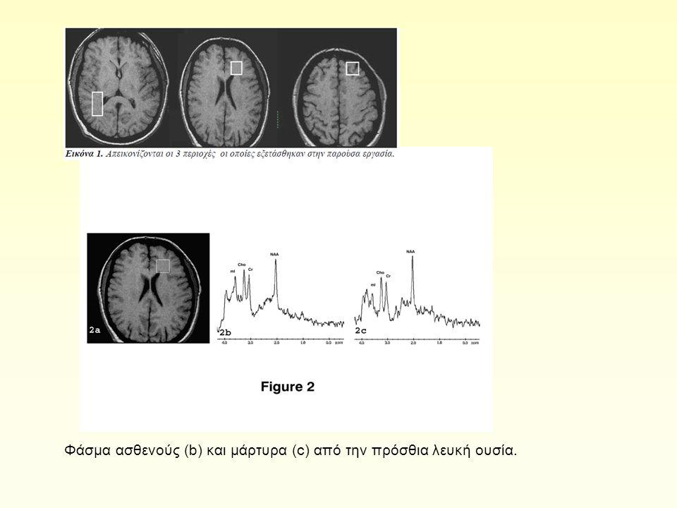 Φάσμα ασθενούς (b) και μάρτυρα (c) από την πρόσθια λευκή ουσία.