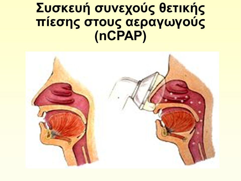 Συσκευή συνεχούς θετικής πίεσης στους αεραγωγούς (nCPAP)