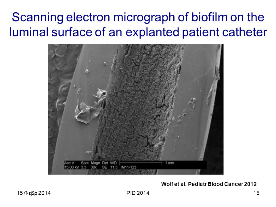 Scanning electron micrograph of biofilm on the luminal surface of an explanted patient catheter 15 Φεβρ 2014PID 201415 Wolf et al.