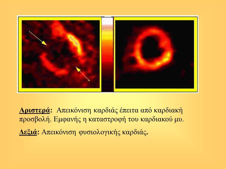 Αριστερά: Απεικόνιση καρδιάς έπειτα από καρδιακή προσβολή. Εμφανής η καταστροφή του καρδιακού μυ. Δεξιά: Απεικόνιση φυσιολογικής καρδιάς.