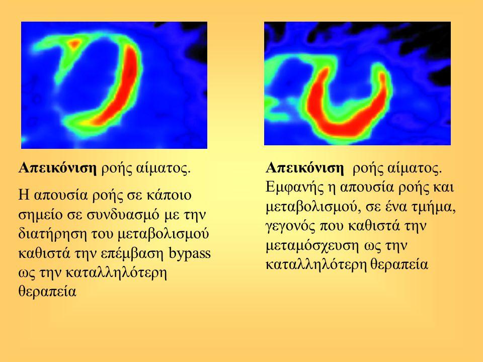 Απεικόνιση ροής αίματος. Η απουσία ροής σε κάποιο σημείο σε συνδυασμό με την διατήρηση του μεταβολισμού καθιστά την επέμβαση bypass ως την καταλληλότε