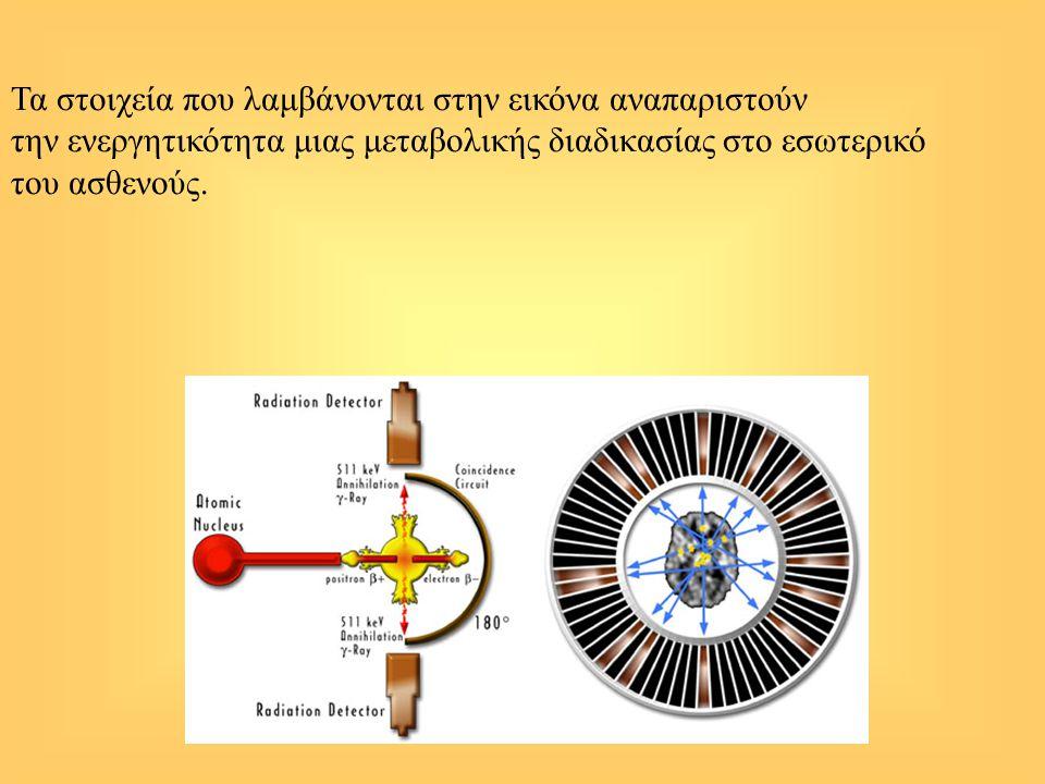 Τα στοιχεία που λαμβάνονται στην εικόνα αναπαριστούν την ενεργητικότητα μιας μεταβολικής διαδικασίας στο εσωτερικό του ασθενούς.