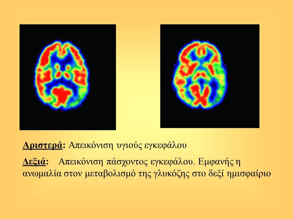 Αριστερά: Απεικόνιση υγιούς εγκεφάλου Δεξιά: Απεικόνιση πάσχοντος εγκεφάλου. Εμφανής η ανωμαλία στον μεταβολισμό της γλυκόζης στο δεξί ημισφαίριο