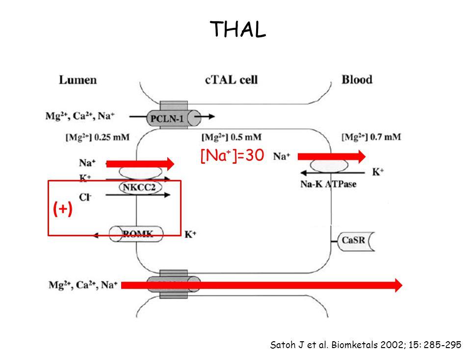 THAL [Na + ]=30 (+) Satoh J et al. Biomketals 2002; 15: 285-295