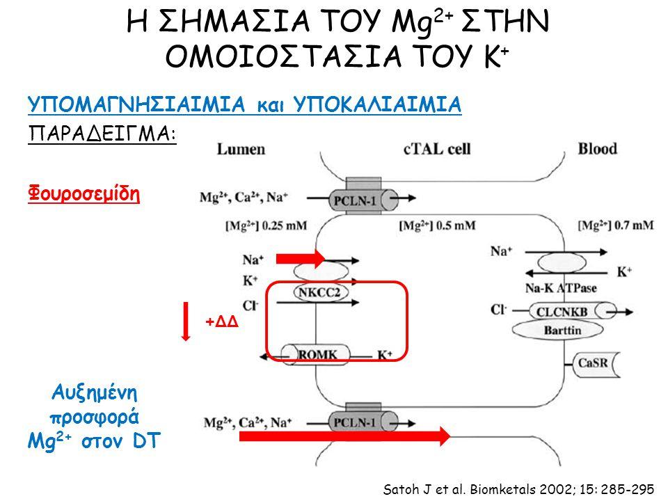 Η ΣΗΜΑΣΙΑ ΤΟΥ Mg 2+ ΣΤΗΝ ΟΜΟΙΟΣΤΑΣΙΑ ΤΟΥ Κ + ΥΠΟΜΑΓΝΗΣΙΑΙΜΙΑ και ΥΠΟΚΑΛΙΑΙΜΙΑ ΠΑΡΑΔΕΙΓΜΑ: Φουροσεμίδη +ΔΔ Αυξημένη προσφορά Mg 2+ στον DT Satoh J et al.