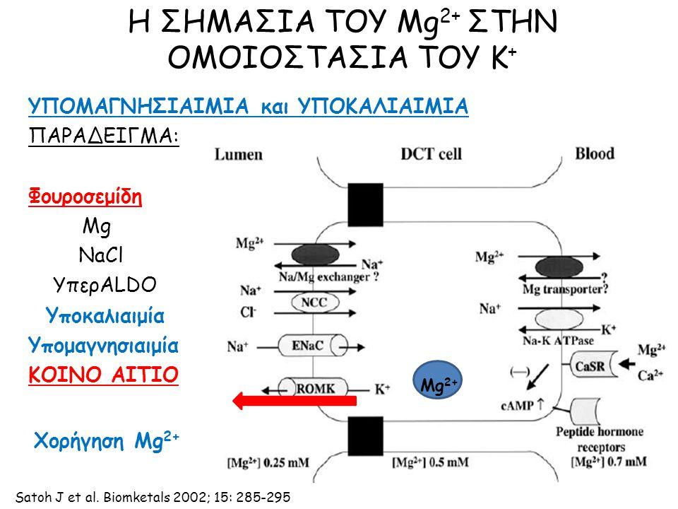 Η ΣΗΜΑΣΙΑ ΤΟΥ Mg 2+ ΣΤΗΝ ΟΜΟΙΟΣΤΑΣΙΑ ΤΟΥ Κ + ΥΠΟΜΑΓΝΗΣΙΑΙΜΙΑ και ΥΠΟΚΑΛΙΑΙΜΙΑ ΠΑΡΑΔΕΙΓΜΑ: Φουροσεμίδη Mg NaCl ΥπερALDO Υποκαλιαιμία Υπομαγνησιαιμία ΚΟΙΝΟ ΑΙΤΙΟ Mg 2+ Χορήγηση Mg 2+ Satoh J et al.