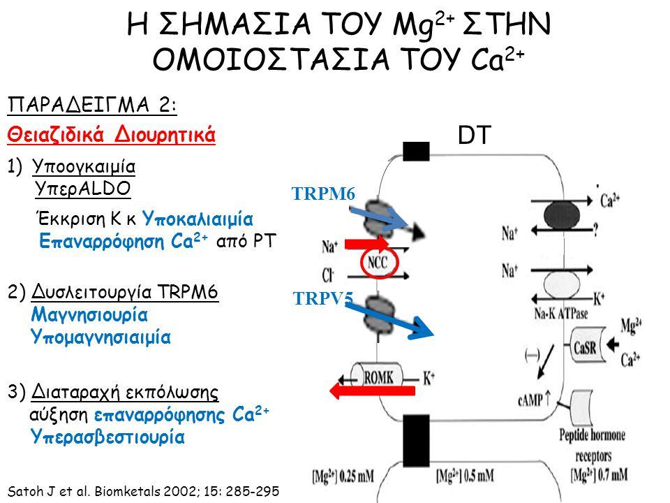 ΠΑΡΑΔΕΙΓΜΑ 2: Θειαζιδικά Διουρητικά Η ΣΗΜΑΣΙΑ ΤΟΥ Mg 2+ ΣΤΗΝ ΟΜΟΙΟΣΤΑΣΙΑ ΤΟΥ Ca 2+ TRPM6 TRPV5 DT 1)Υποογκαιμία ΥπερALDO Έκκριση Κ κ Υποκαλιαιμία Επαναρρόφηση Ca 2+ από PT 2) Δυσλειτουργία TRPM6 Μαγνησιουρία Υπομαγνησιαιμία 3) Διαταραχή εκπόλωσης αύξηση επαναρρόφησης Ca 2+ Υπερασβεστιουρία Satoh J et al.