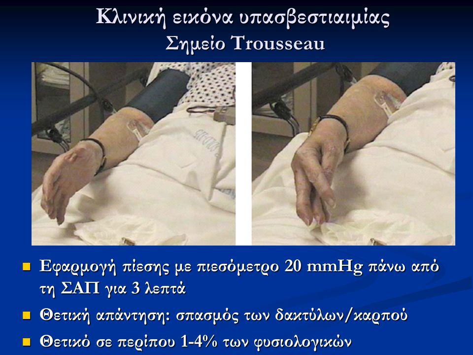Κλινική εικόνα υπασβεστιαιμίας Σημείο Trousseau Εφαρμογή πίεσης με πιεσόμετρο 20 mmHg πάνω από τη ΣΑΠ για 3 λεπτά Εφαρμογή πίεσης με πιεσόμετρο 20 mmH