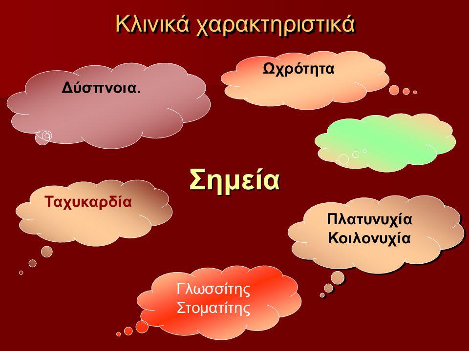Κλινικά χαρακτηριστικά Σημεία Ωχρότητα Πλατυνυχία Κοιλονυχία Πλατυνυχία Κοιλονυχία Γλωσσίτης Στοματίτης Ταχυκαρδία Δύσπνοια.