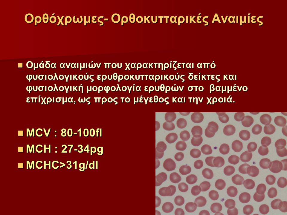 Ορθόχρωμες- Ορθοκυτταρικές Αναιμίες Ομάδα αναιμιών που χαρακτηρίζεται από φυσιολογικούς ερυθροκυτταρικούς δείκτες και φυσιολογική μορφολογία ερυθρών σ