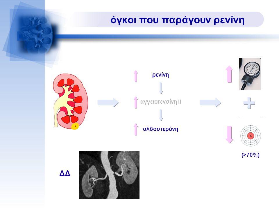 όγκοι που παράγουν ρενίνη αγγειοτενσίνη ΙΙ ρενίνη αλδοστερόνη ΔΔ (>70%)