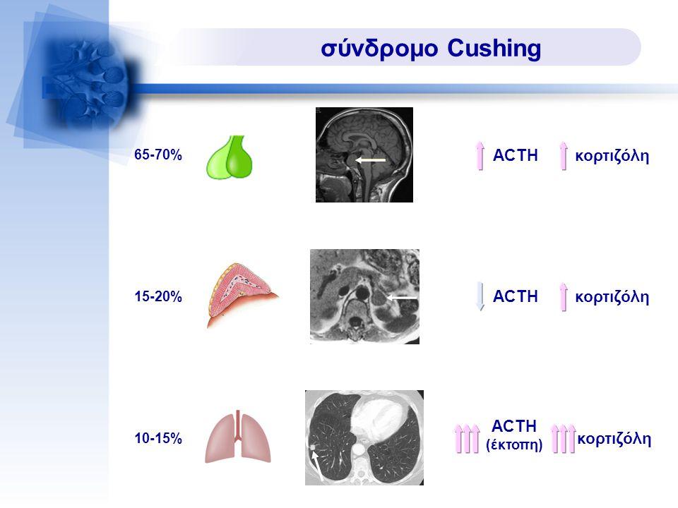 σύνδρομο Cushing ACTH 65-70% κορτιζόλη ACTH 15-20% κορτιζόλη 10-15% ACTH (έκτοπη) κορτιζόλη