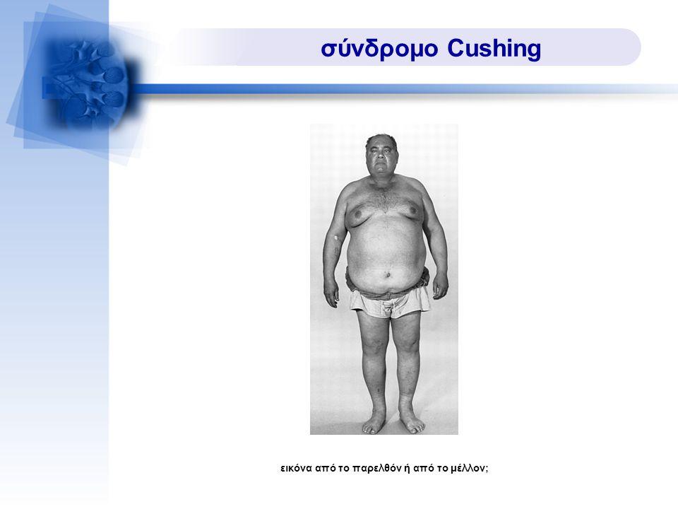 σύνδρομο Cushing εικόνα από το παρελθόν ή από το μέλλον;