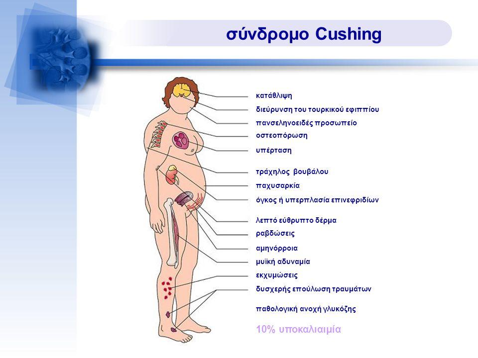 σύνδρομο Cushing κατάθλιψη διεύρυνση του τουρκικού εφιππίου πανσεληνοειδές προσωπείο οστεοπόρωση υπέρταση τράχηλος βουβάλου παχυσαρκία όγκος ή υπερπλα
