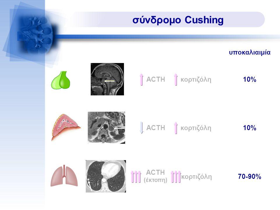 σύνδρομο Cushing υποκαλιαιμία ACTHκορτιζόλη10% ACTHκορτιζόλη 10% ACTH (έκτοπη) κορτιζόλη 70-90%