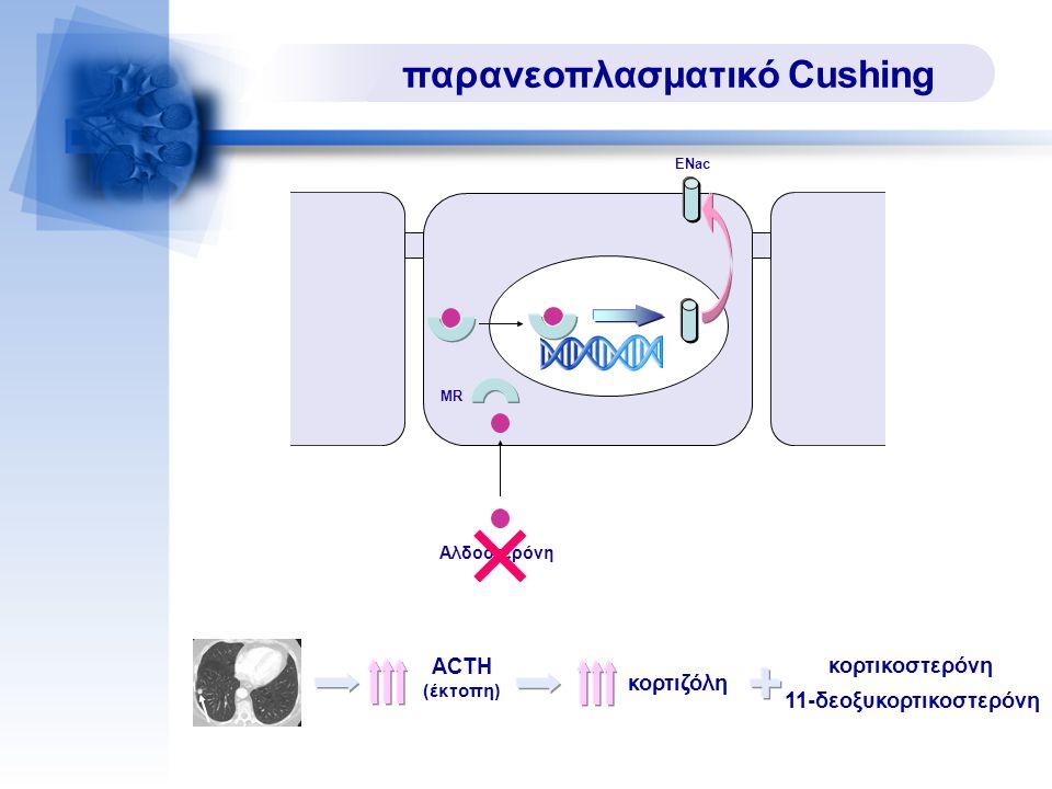 παρανεοπλασματικό Cushing ACTH (έκτοπη) κορτιζόλη κορτικοστερόνη 11-δεοξυκορτικοστερόνη MR Αλδοστερόνη ENac