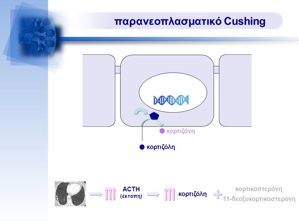 παρανεοπλασματικό Cushing ACTH (έκτοπη) κορτιζόλη κορτικοστερόνη 11-δεοξυκορτικοστερόνη κορτιζόλη κορτιζόνη