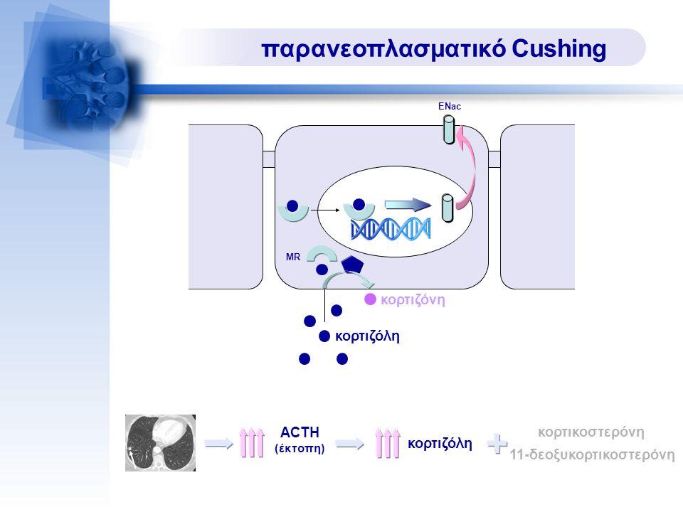 παρανεοπλασματικό Cushing ACTH (έκτοπη) κορτιζόλη κορτικοστερόνη 11-δεοξυκορτικοστερόνη MR ENac κορτιζόλη κορτιζόνη