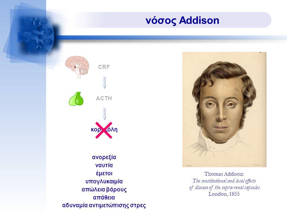 νόσος Addison ACTH CRF κορτιζόλη ανορεξία ναυτία έμετοι υπογλυκαιμία απώλεια βάρους απάθεια αδυναμία αντιμετώπισης στρες Thomas Addison: The constitutional and local effects of disease of the supra-renal capsules.