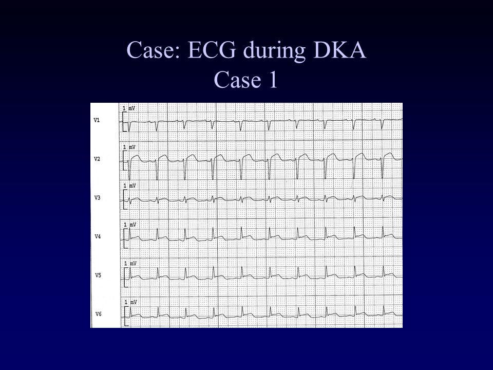 Case: ECG during DKA Case 1