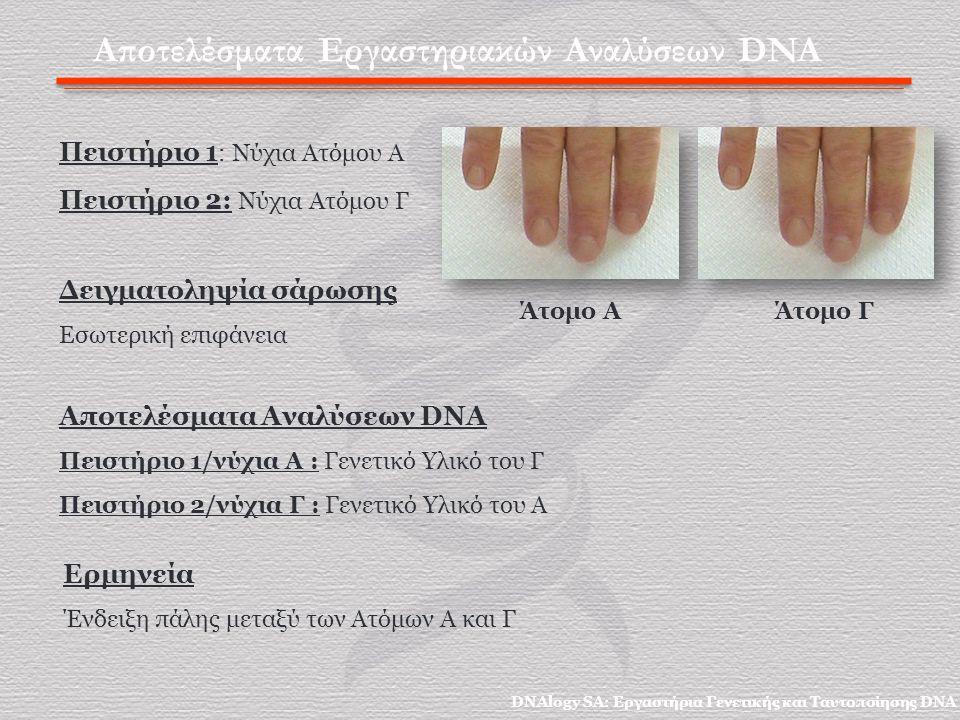 Αποτελέσματα Εργαστηριακών Αναλύσεων DNA Πειστήριο 1 : Νύχια Ατόμου Α Πειστήριο 2: Νύχια Ατόμου Γ Αποτελέσματα Αναλύσεων DNA Πειστήριο 1/νύχια Α : Γενετικό Υλικό του Γ Πειστήριο 2/νύχια Γ : Γενετικό Υλικό του Α Δειγματοληψία σάρωσης Εσωτερική επιφάνεια Άτομο ΑΆτομο Γ Ερμηνεία Ένδειξη πάλης μεταξύ των Ατόμων Α και Γ DNAlogy SA: Εργαστήρια Γενετικής και Ταυτοποίησης DNA