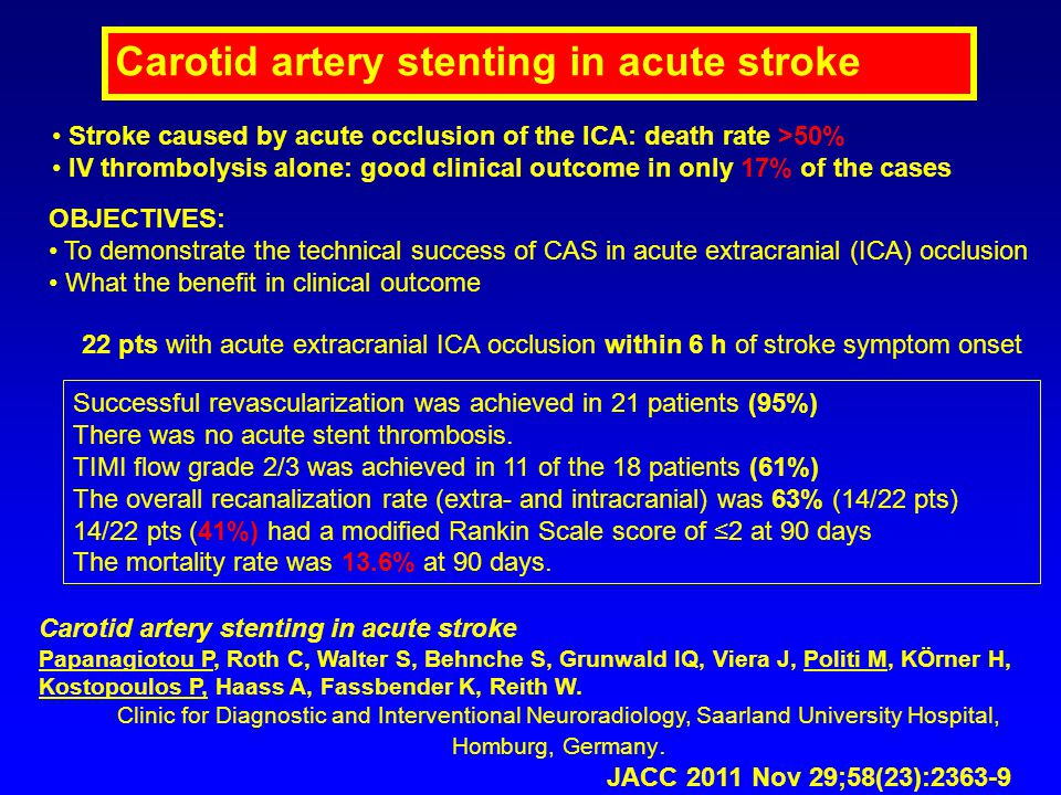 Carotid artery stenting in acute stroke Papanagiotou P, Roth C, Walter S, Behnche S, Grunwald IQ, Viera J, Politi M, KÖrner H, Kostopoulos P, Haass A,