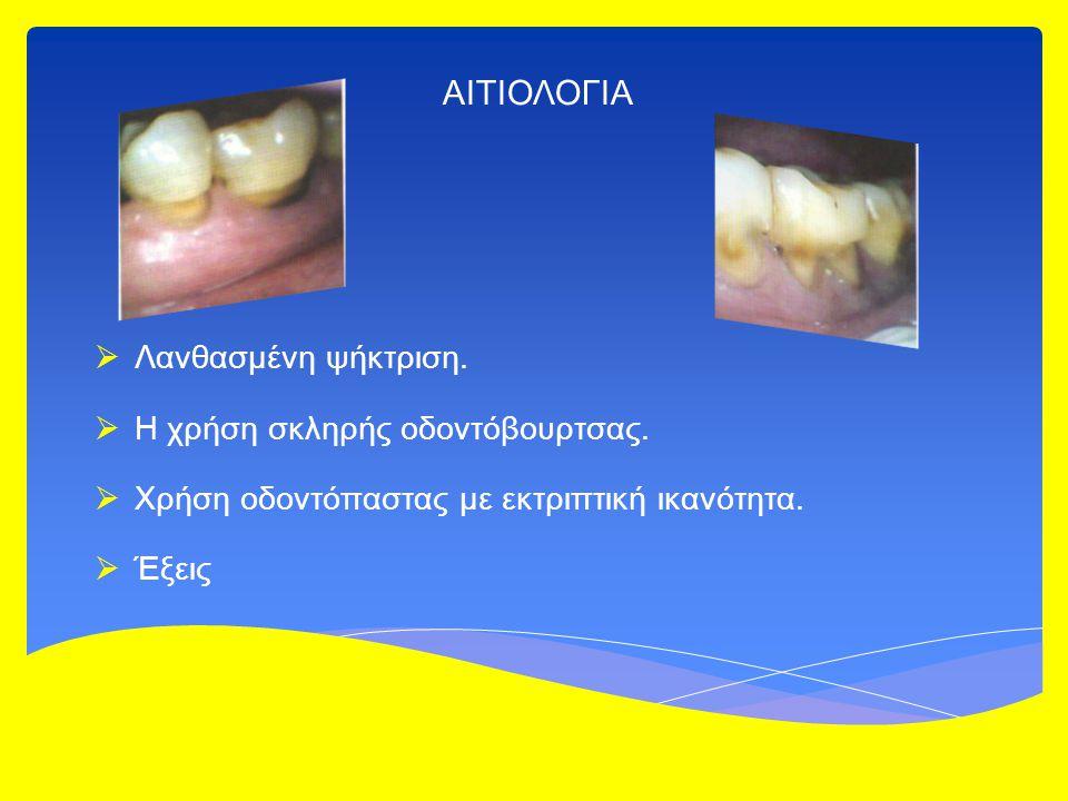 ΑΙΤΙΟΛΟΓΙΑ  Λανθασμένη ψήκτριση.  Η χρήση σκληρής οδοντόβουρτσας.  Χρήση οδοντόπαστας με εκτριπτική ικανότητα.  Έξεις