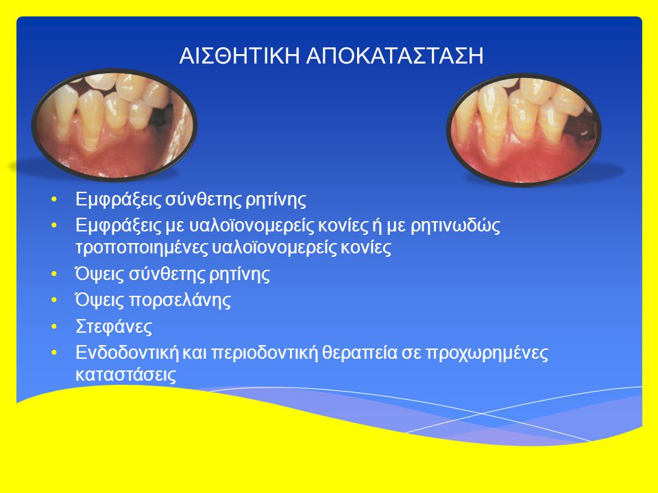 ΑΙΣΘΗΤΙΚΗ ΑΠΟΚΑΤΑΣΤΑΣΗ Εμφράξεις σύνθετης ρητίνης Εμφράξεις με υαλοϊονομερείς κονίες ή με ρητινωδώς τροποποιημένες υαλοϊονομερείς κονίες Όψεις σύνθετης ρητίνης Όψεις πορσελάνης Στεφάνες Ενδοδοντική και περιοδοντική θεραπεία σε προχωρημένες καταστάσεις