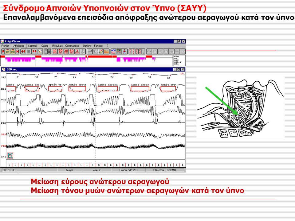 Σύνδρομο Απνοιών Υποπνοιών στον Ύπνο (ΣΑΥΥ) Επαναλαμβανόμενα επεισόδια απόφραξης ανώτερου αεραγωγού κατά τον ύπνο Μείωση εύρους ανώτερου αεραγωγού Μεί