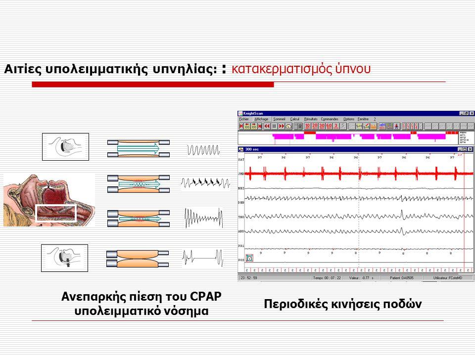 Ανεπαρκής πίεση του CPAP υπολειμματικό νόσημα Περιοδικές κινήσεις ποδών Αιτίες υπολειμματικής υπνηλίας: : κατακερματισμός ύπνου