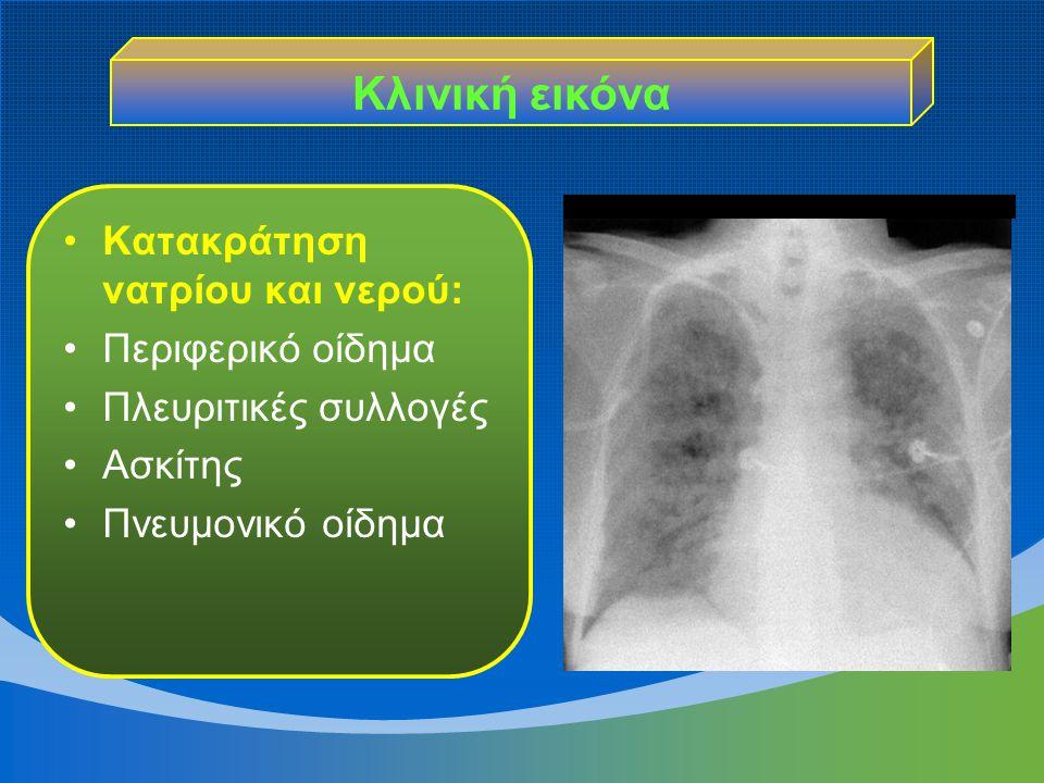 Κατακράτηση νατρίου και νερού: Περιφερικό οίδημα Πλευριτικές συλλογές Ασκίτης Πνευμονικό οίδημα Κλινική εικόνα