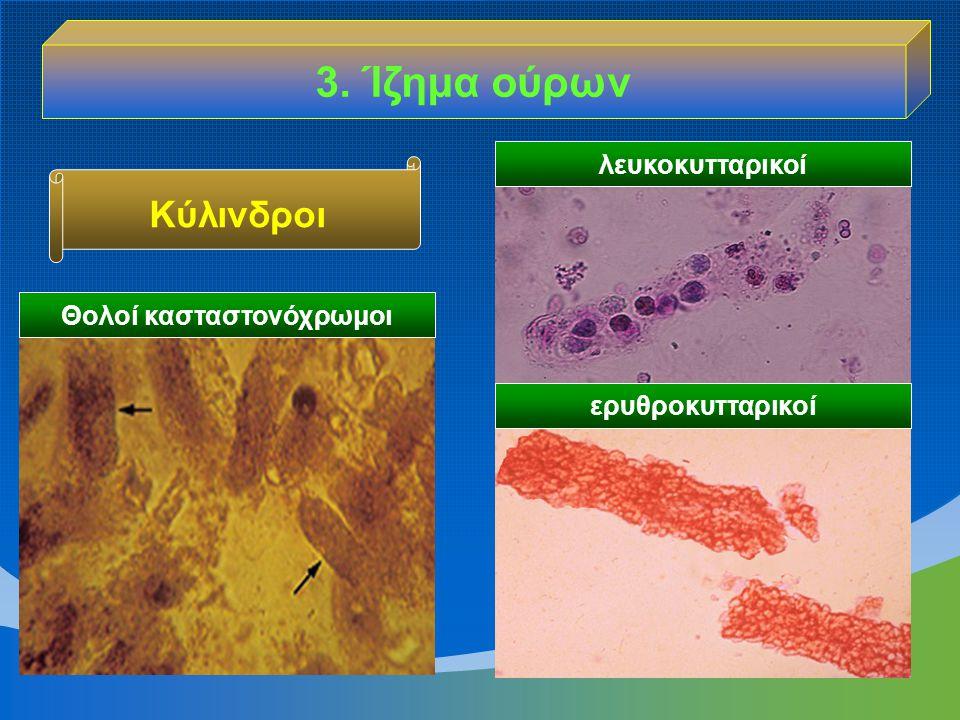 3. Ίζημα ούρων λευκοκυτταρικοί ερυθροκυτταρικοί Θολοί κασταστονόχρωμοι Κύλινδροι