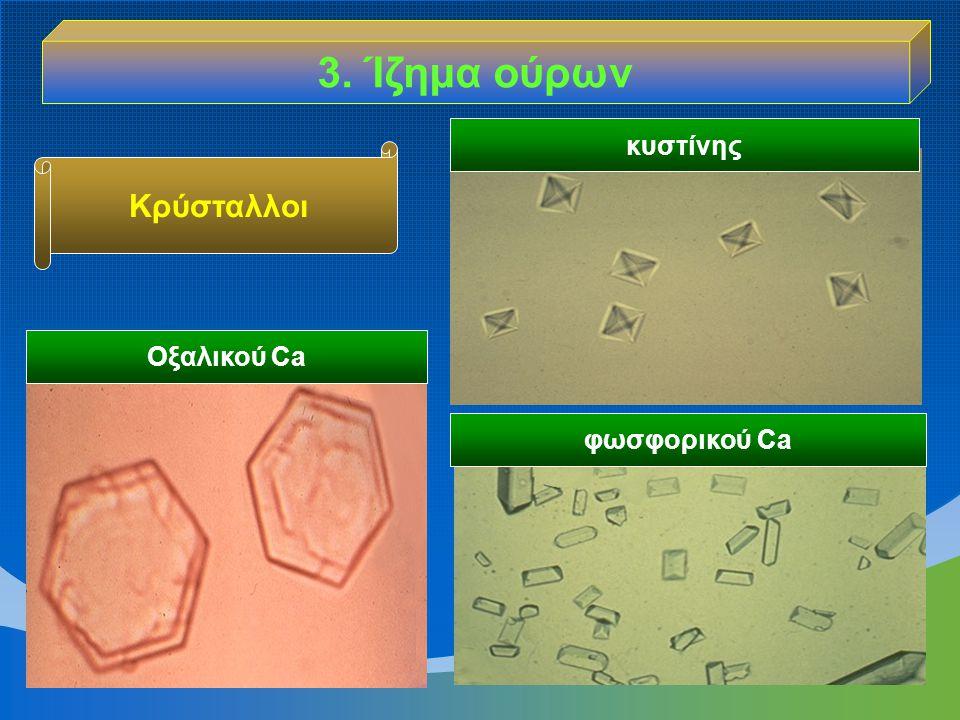 Οξαλικού Ca φωσφορικού Ca κυστίνης Κρύσταλλοι 3. Ίζημα ούρων