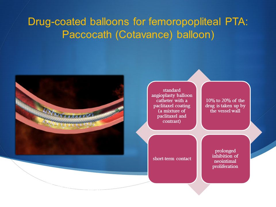 Drug-coated balloons for femoropopliteal PTA: Paccocath (Cotavance) balloon) standard angioplasty balloon catheter with a paclitaxel coating (a mixture of paclitaxel and contrast) 10% to 20% of the drug is taken up by the vessel wall short-term contact prolonged inhibition of neointimal proliferation Scheller B et al.