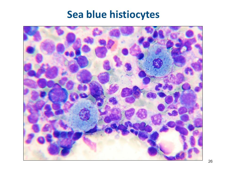 Sea blue histiocytes 26