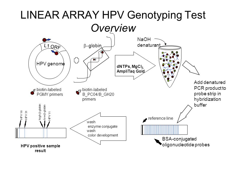 LINEAR ARRAY HPV Genotyping Test Overview  globin HPV genome L1 ORF biotin-labeled PGMY primers biotin-labeled B_PC04/B_GH20 primers PCR dNTPs, MgCl 2, AmpliTaq Gold Add denatured PCR product to probe strip in hybridization buffer wash enzyme conjugate wash color development HPV positive sample result HPV 16 HPV 31 high  -globin low  -globin HPV 11 NaOH denaturant BSA-conjugated oligonucleotide probes reference line