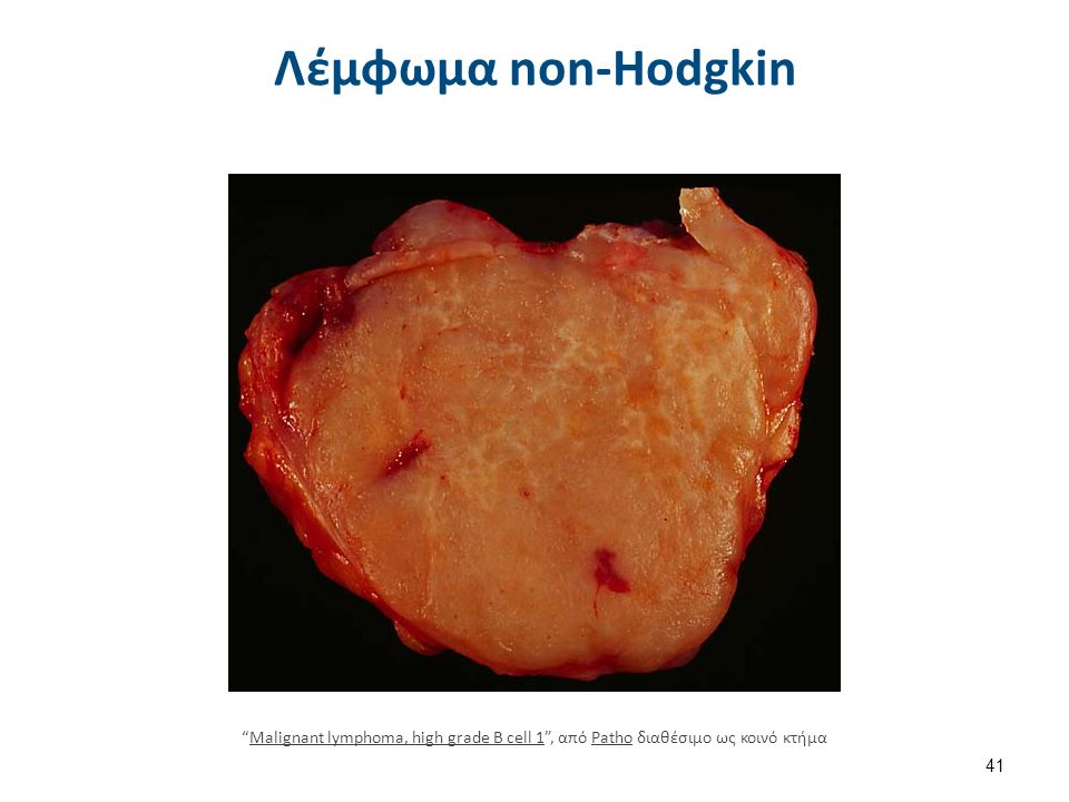Λέμφωμα non-Hodgkin 41 Malignant lymphoma, high grade B cell 1 , από Patho διαθέσιμο ως κοινό κτήμαMalignant lymphoma, high grade B cell 1Patho